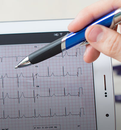 Ekg graph on screen